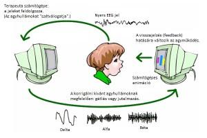 neurofeedback-overview